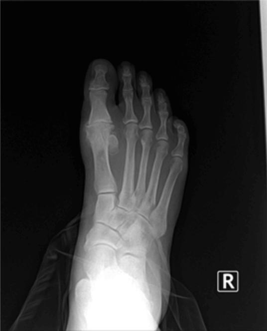 post traumatic arthritis foot