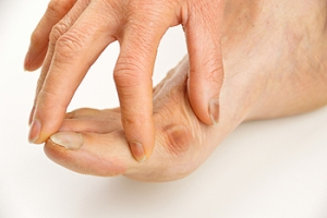 Why Do Bunions Develop?