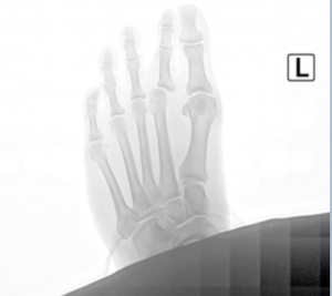 Dr. Timothy Young Talks About Joint fluid and Bunion Surgery.