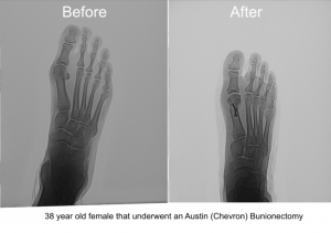 Dr. Brandon Nelson Discusses How to Find The Best Bunion Surgeon