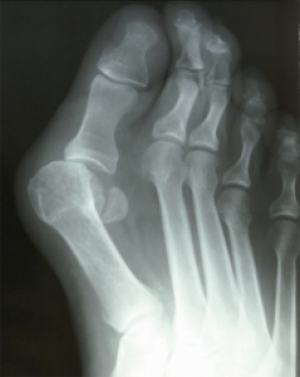 Dr. Brandon Nelson Discusses the Best Options for Bunion Surgery