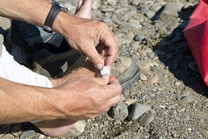 Can Blisters Be Prevented While Hiking?