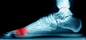 Where Are the Sesamoid Bones Located?